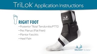 TriLok - RIGHT foot application for PTTD, Flat Feet, Plantar Fasciitis or Heel Pain