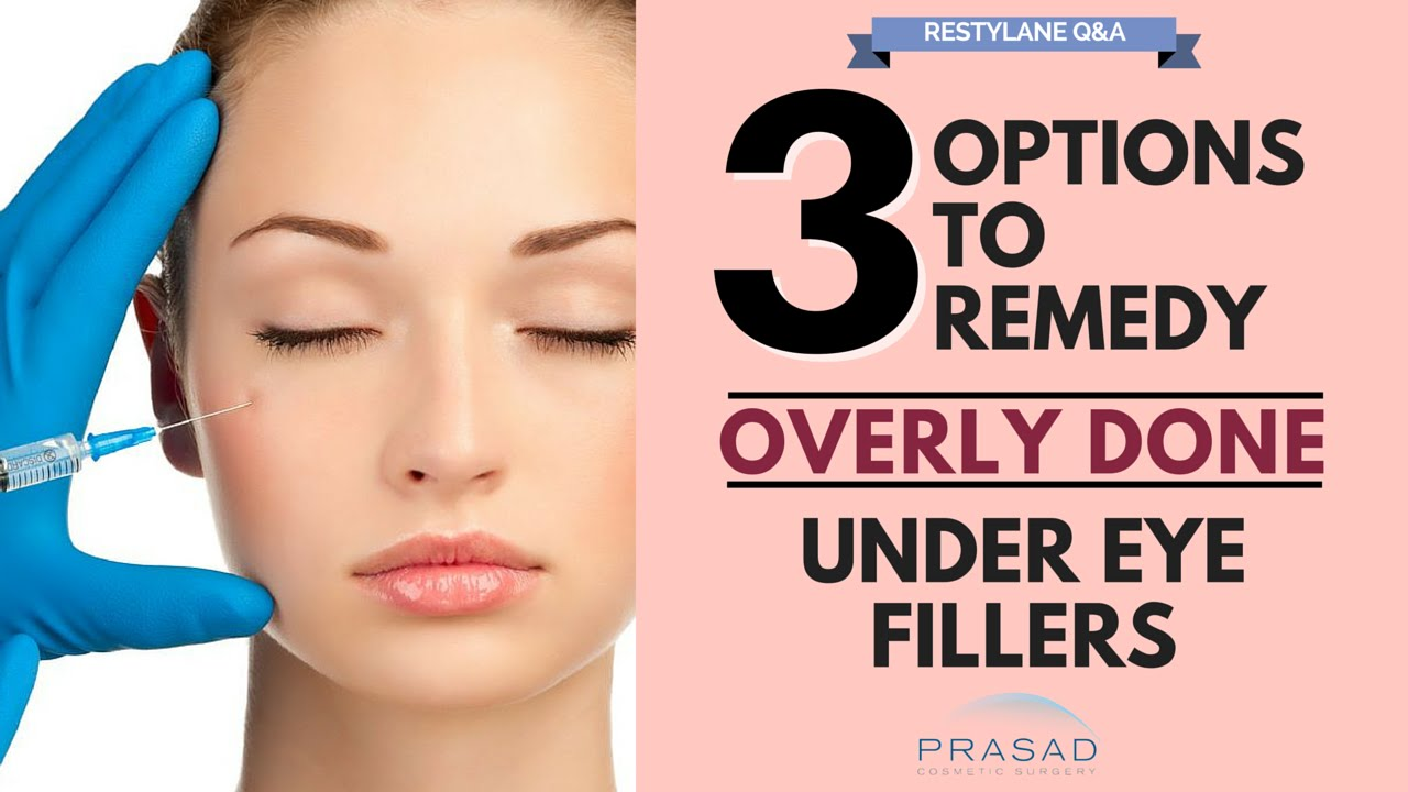 Options to Remove Excess Filler Placement, and Treatments to Improve