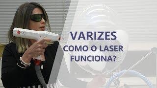 Laser varizes em tratamento nhs a para
