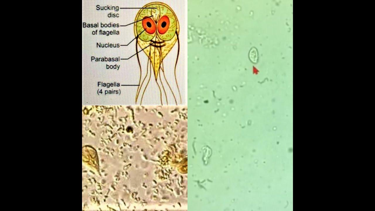 gyógyszer giardiasis amoebiasis trichomoniasis kezelésére parazitá eltavolitasa