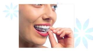 マウスピースを使った矯正歯科なら名駅歯科クリニック・矯正歯科へ