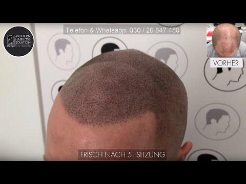 [2019 Haarpigmentierung in Perfektion] 3. Sitzung und frisch nach 4.