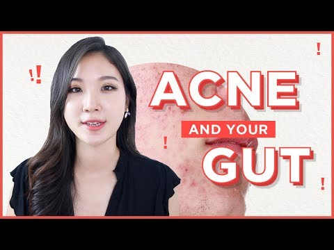 💩How To Treat Acne from the Inside Out • Acne and Gut health