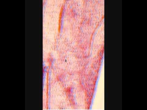 Селезенка - строение, почему увеличена и болит, симптомы