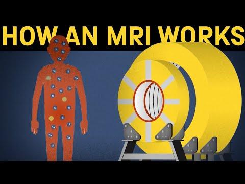 How Does An MRI Machine Work?