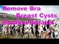 Remove Bra -  Bra Problems - Swollen Breasts - Breast Cysts