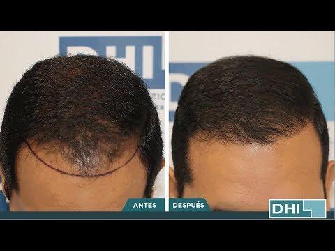 Implantación Capilar en DHI