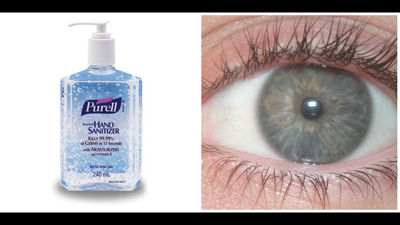 Hand Sanitizer To The Eye Youtube
