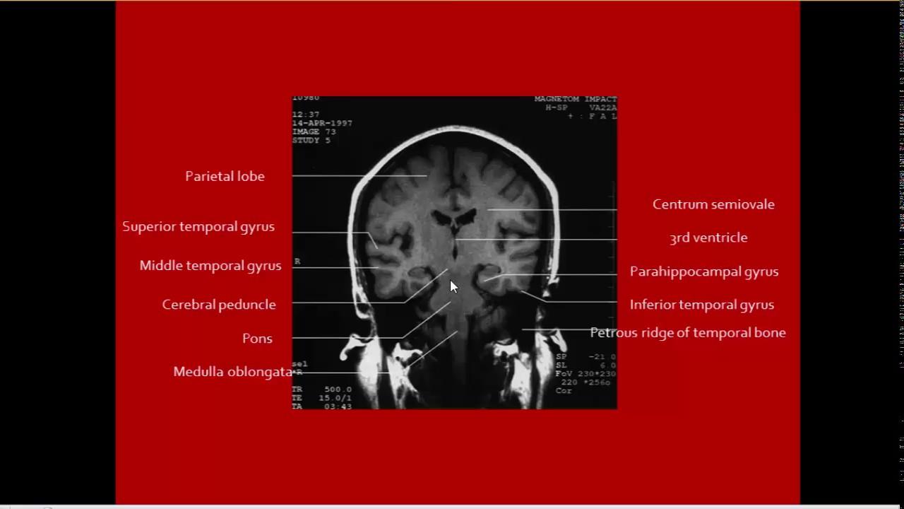 Brain Herniation imaging - YouTube