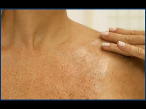 how to remove dead skin from hands