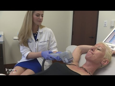 One-time procedure eliminating sweat and odor for patients