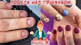 Восстановление обкусанных ногтей Часть 3 Ремонт трещины на ногте