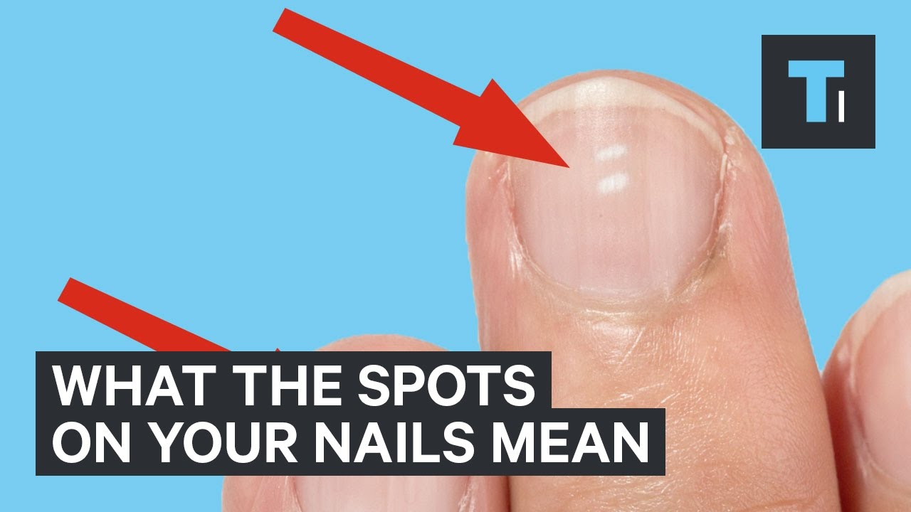 What white marks on nails mean about health - YouTube