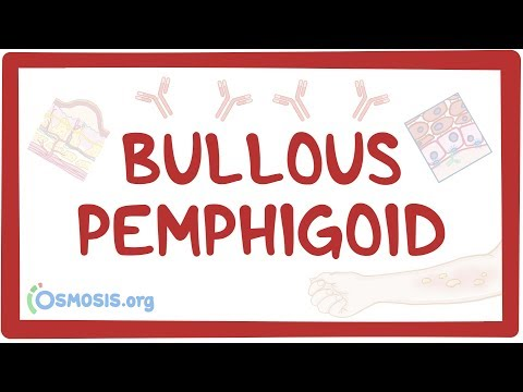 Pemphigoid Gestationis Is Definitely An Autoimmune Rash While Pregnant
