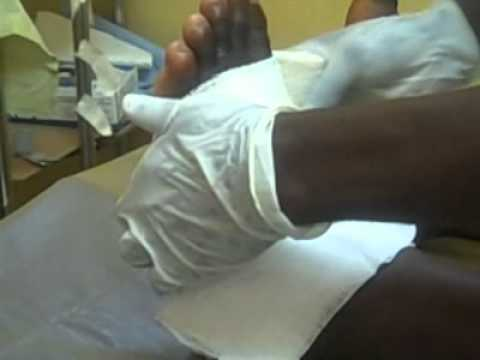 Buruli Ulcer Disease: Cleaning and Dressing the Ulcer