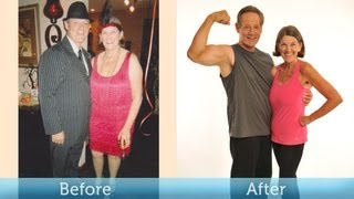 60 Lbs Down at 60! Weight Loss Transformation (Before & After) with IdealShape