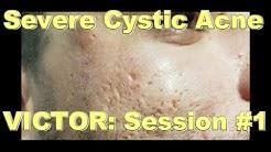 hqdefault - Cordran Tape For Cystic Acne