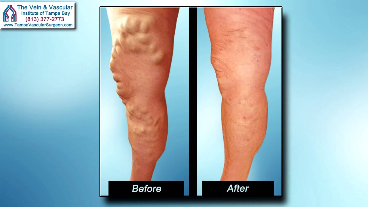 varicose veins treatment without surgery