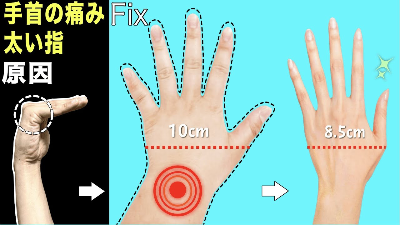 指が細くなる!手首の痛み腱鞘炎も解消【原因は〇〇と判明】