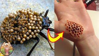 Faites ATTENTION Aux Piqures de Ces Insectes !