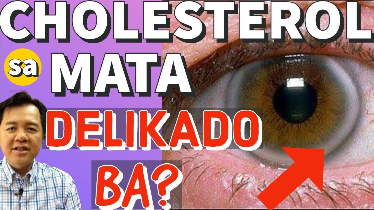 Mata at Cholesterol: Delikado Ba? - By Doc Willie Ong #1077