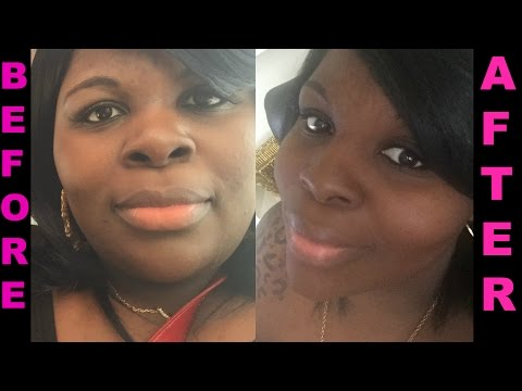 HOW I Lost 30 LBS In 30 Days With NO Exercise (PICS)  | RANT & UPDATE!