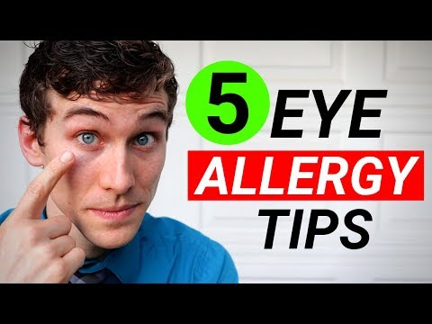 How To Get Rid Of Itchy Eyes - 5 Tips For Itchy Eyes Allergy Relief