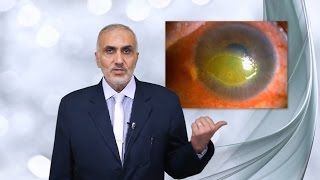 mi segít, ha a látás homályos betegségek és látás patológiái