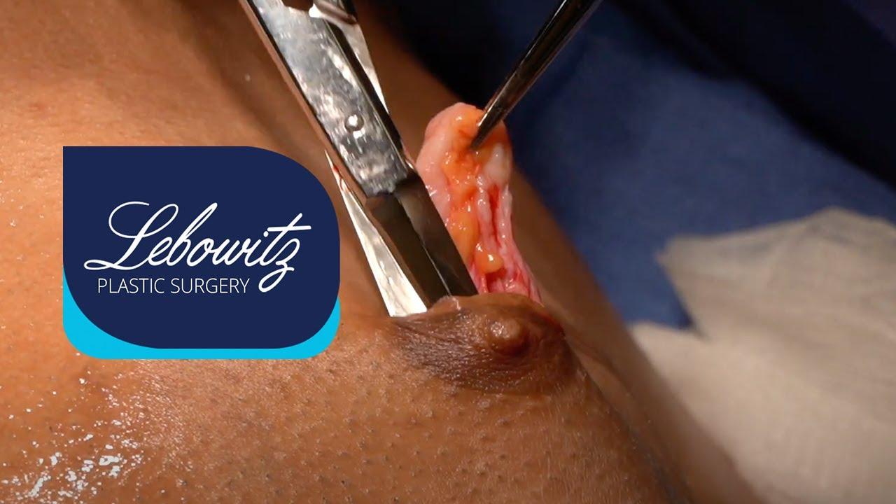 Gynecomastia Surgery on Maryland Male (33) Bilateral Gland Removal