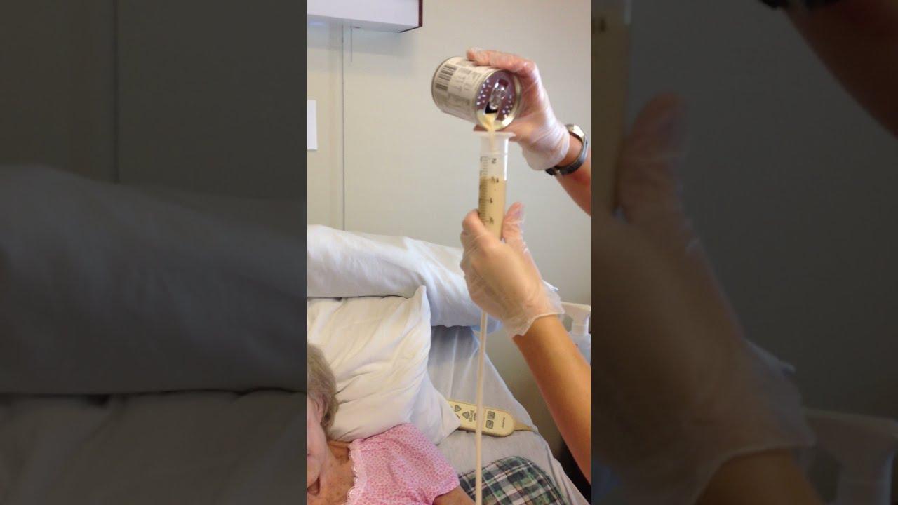 How To Do A Tube Feeding Bolus Method Youtube