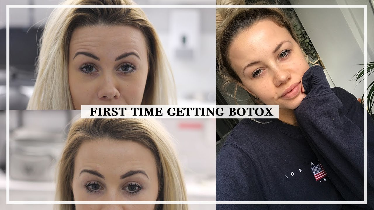 Botox: My First Experience, What To Expect, Before/After | Copper Garden