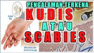 Mengatasi Scabies Dengan Bahan Alami Penyebab Kudis Kudis disebabkan oleh tungau Sarcoptes scabiei. .