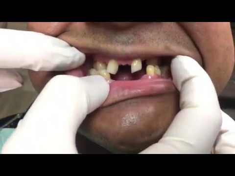 Houston Cosmetic Dentist ... underbite for Snap-on Smile ... and you can eat!!