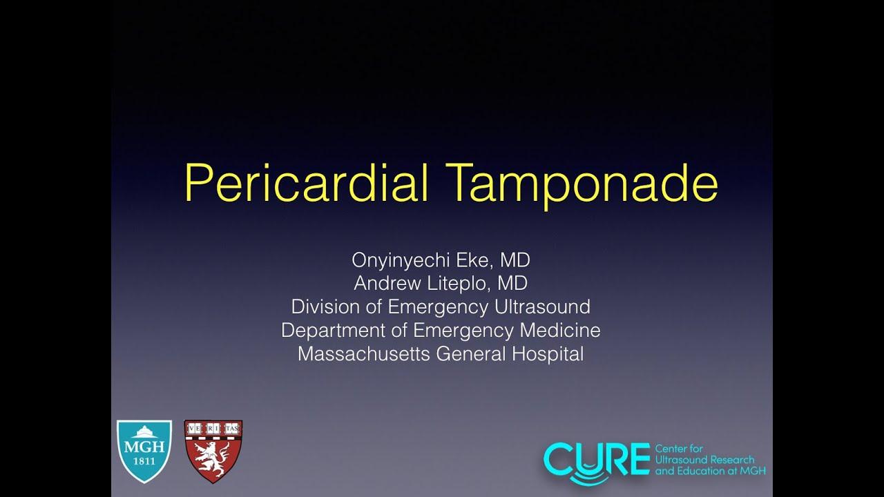 Pericardial Tamponade