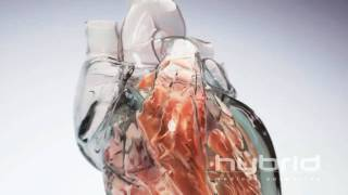 Glass Heart (Hybrid Medical Animation) HD