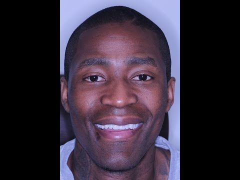 Jamal Crawford, NBA's LA Clippers, discusses his I-BRITE Eye Whitening Procedure