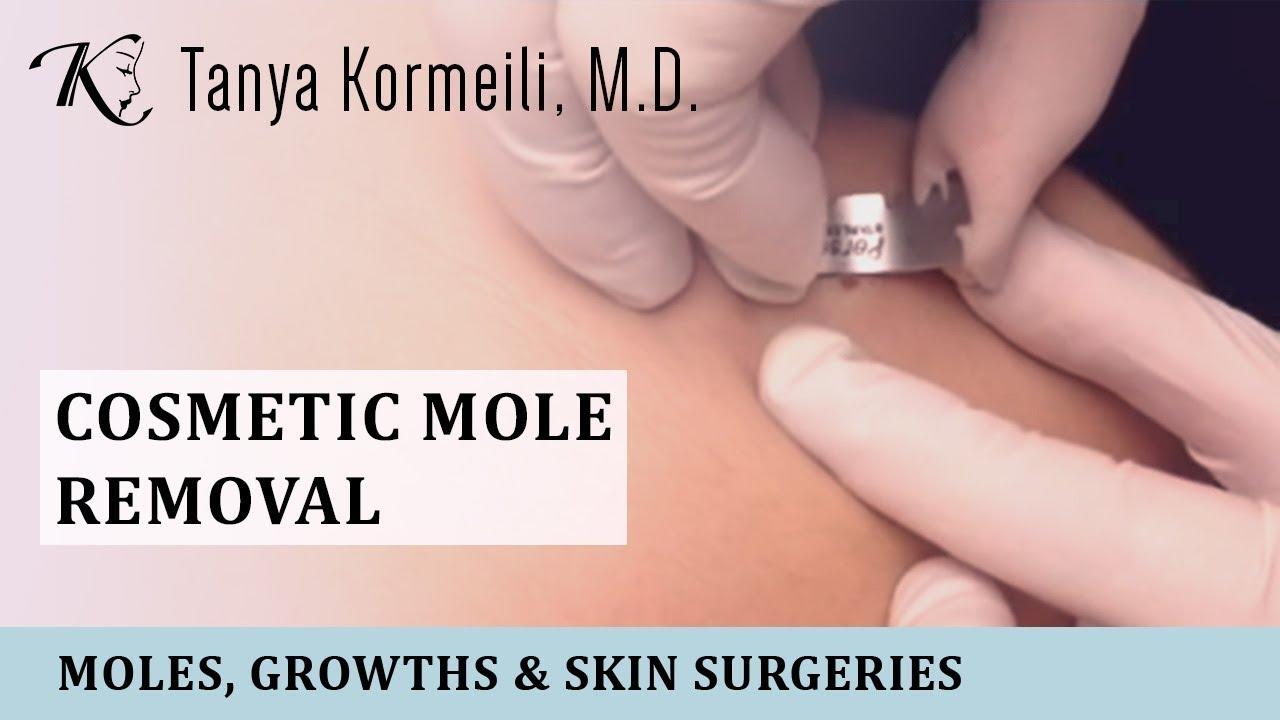 Mole Removal Santa Monica - Dr  Kormeili Dermatology