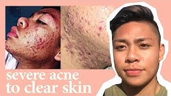 hqdefault - Acne Free Am Foam