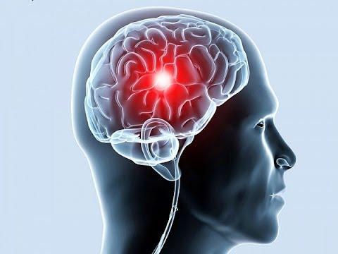Инсульт - лечение болезни. Симптомы и профилактика