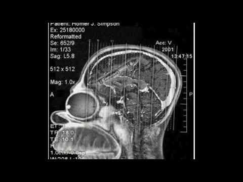Rad Tech Vs MRI Tech