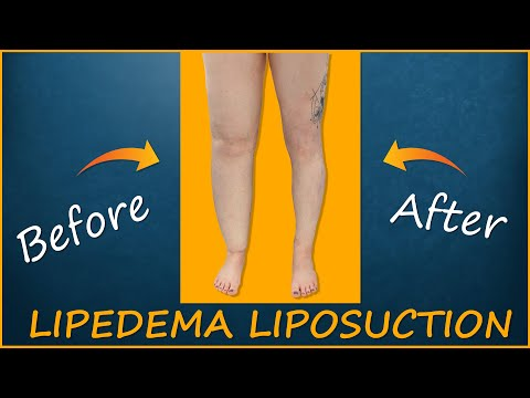 Lipedema Liposuction | Lipo 360° Legs | Immediate Results | Cankles & Knees | Expert Dr. Thomas Su