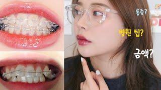 (ENG SUB) 성형효과 치아 교정 & 25살…