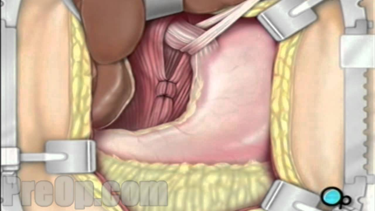 Hernia - Hiatal Open Repair Surgery PreOp® Patient Education