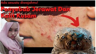 Penyebab Jerawat ,kutu Demodex #jerawat #demodex #kutuwajah