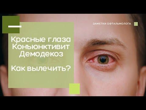 Красные глаза    Конъюнктивит    Демодекоз