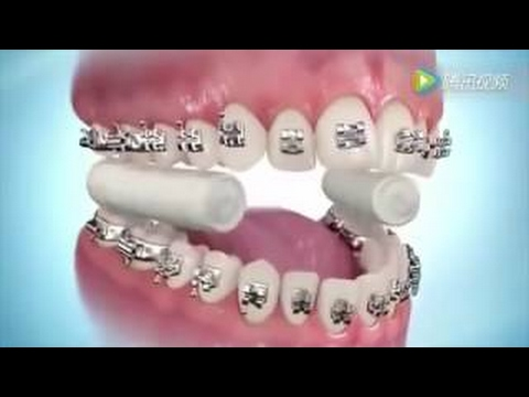 牙套佩戴全過程大公開,決定戴牙套之前一定要看!