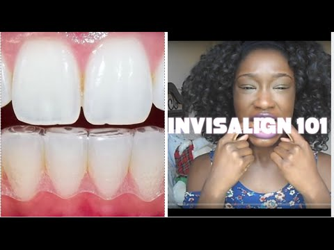Invisalign 101: The Good, The Bad, The Ugly |Invisalign Journey Part 1
