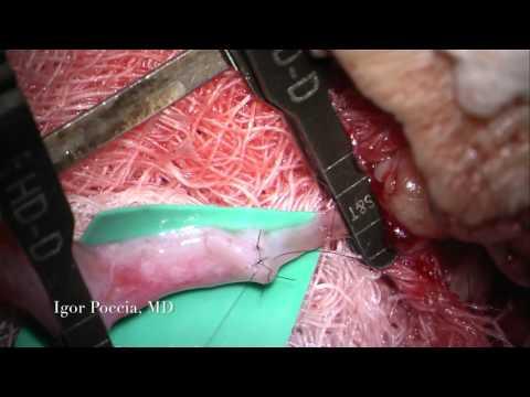 MICROSURGERY - End To End Venous Graft to Artery Anastomosis