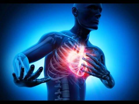Как возникает инфаркт миокарда