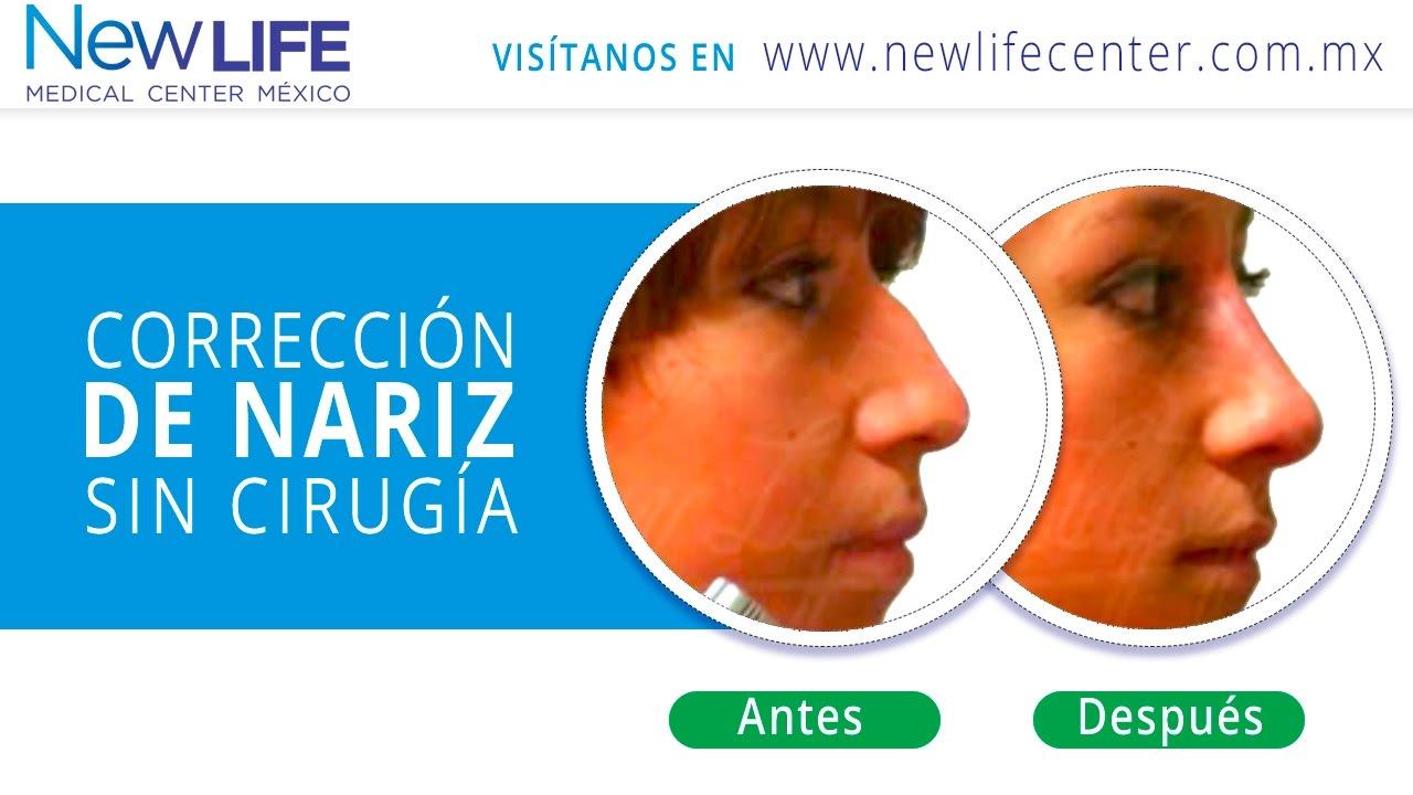 adelgazar la nariz sin cirugia